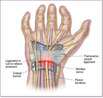 I have a lot of pain when I put my hand in a fist should I be worried?