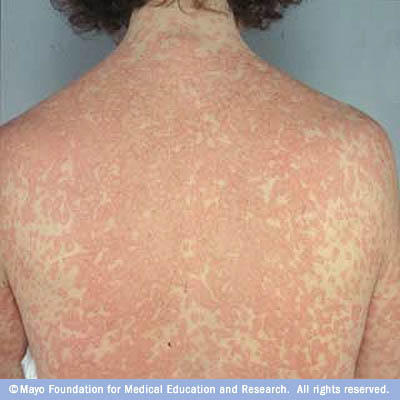 Could I have I developed an allergy to acne medication?
