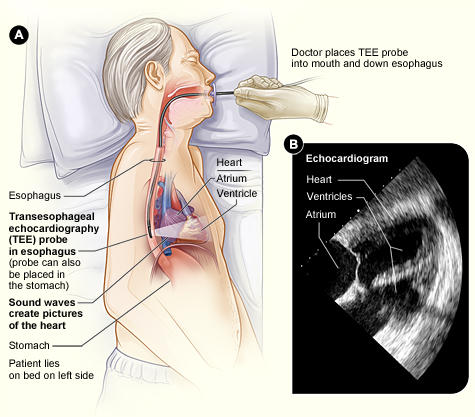 How do I know if I need a transesophageal echocardiography?