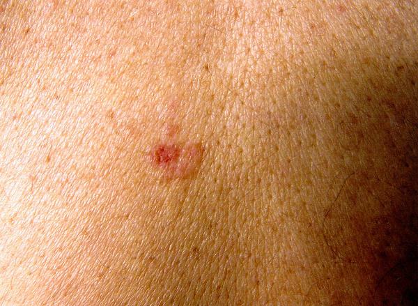 Do people with bcc skin cancer get good cures after surgery, or is it only a matter of time to a recurrence?