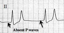 What does it mean if I have absent P waves on ekg?