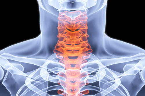 What is the best specialist in treating cervical spine problems?