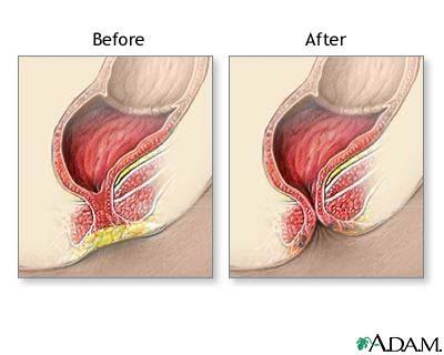 When you are born, can you have a imperforate anus repair?