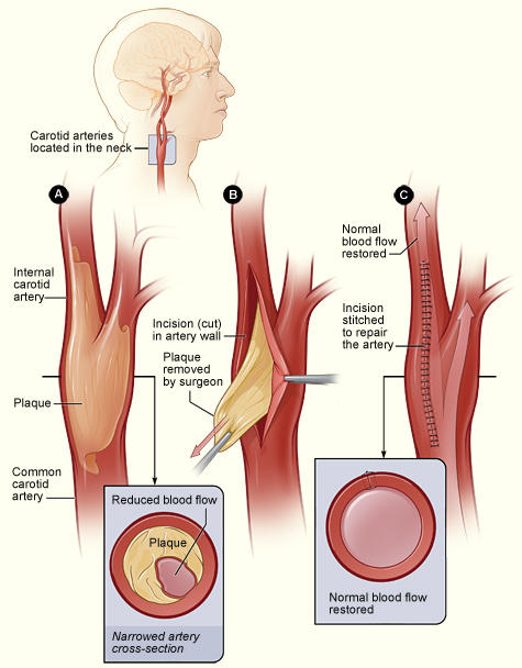 How can I convince my mom to have surgery on her clogged arteries in her neck?