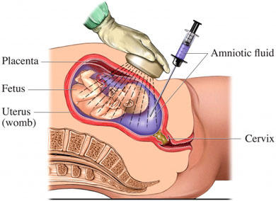 What is an amniocentesis (amnio)?