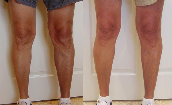Will skipping (jump rope) make varicose veins worse?