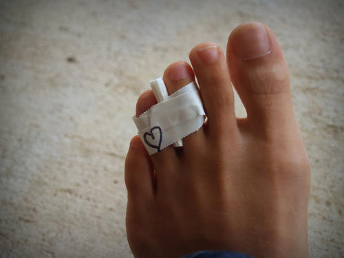 How can I get my friend treatment for his? Toe fracture?