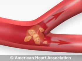 How do you recognize a transient ischemic attack (tia)?