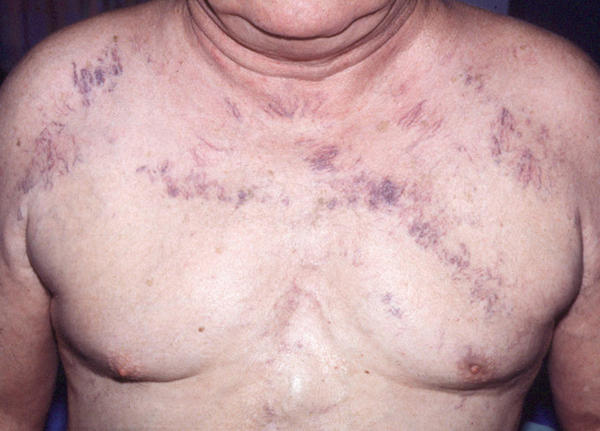 What could cause green veins on chest extremely visible, chest soreness, chest pains?