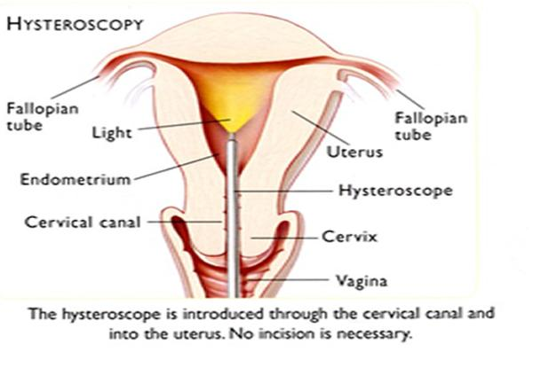 Hysteroscopy: does one need a few hours or a whole day of recovery time?