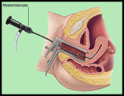 Anyone have perf with a hysteroscopy?