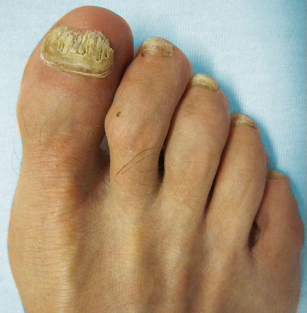 What's the best way to treat a nail fungus?