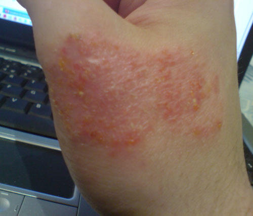 I think I have eczema but I don't know. What does it look like?