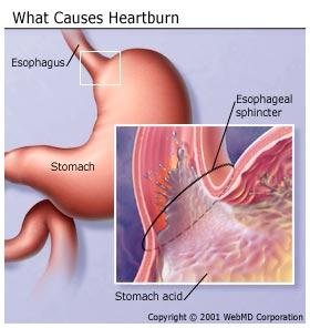Are heart burn and acid reflux the same thing?