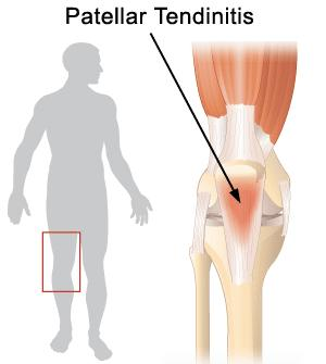 How to return to soccer after year out with patella tendonitis and small tear?