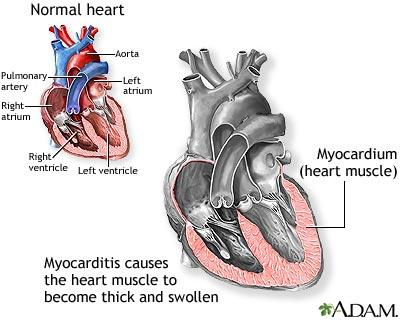 What are the symptoms of viral myocarditis?