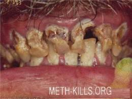 How will methamphetamine drug use cause tooth decay?