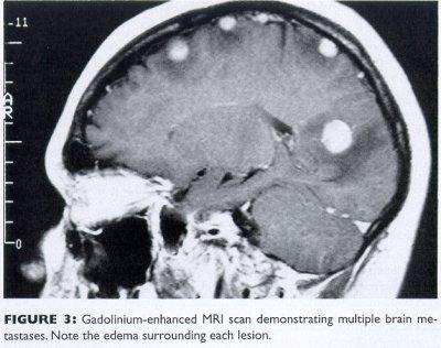 My father has swelling of the brain with fluid as well as quarter size spots all over his brain. What does it mean?