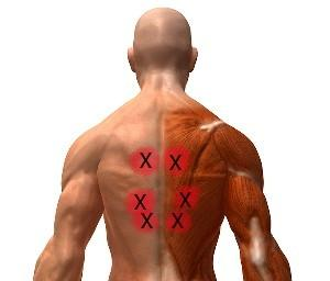 I have pain in my right upper chest and back today. Do you think it is a muscle sprain?