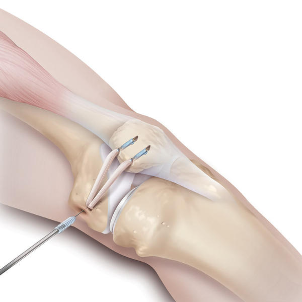 How do the realign the knee from slipping. Does that require surgery?