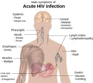 What are the first symptoms of hiv?