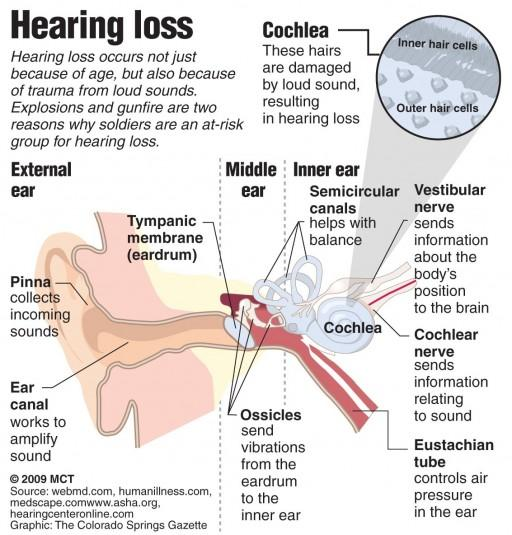 hearing impairment Deaf and hearing impaired this page provides links to various programs and resources for students who are deaf and hearing impaired: definition of deafness (ohio administrative code 3301-51-01 (b)(10)(d)(iv).