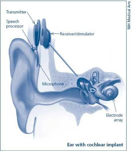 Can a person can gain hearing capacity?