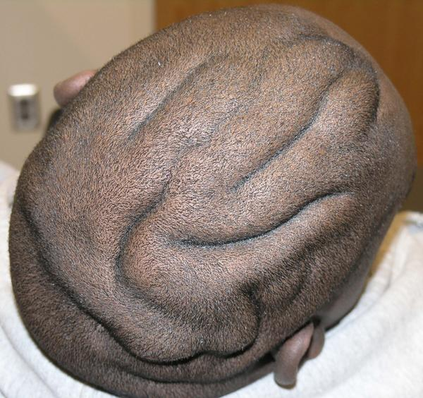 What is it called when your scalp looks like a brain?