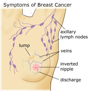 How long after getting breast cancer will a person start to notice the symptoms?