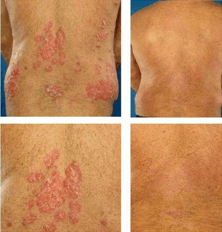 Are certain types of people more likely to suffer from psoriasis?