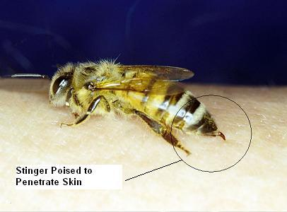 Is it possible to know if you are allergic to a bee before you get stung?