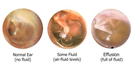 What could cause a severe ear infection?