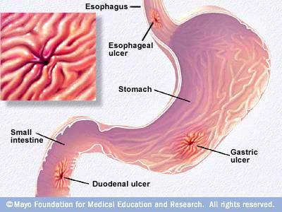 Will stomach ulcers heal on their own - Doctor answers