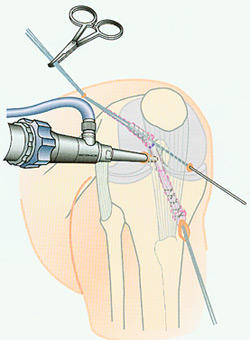 My orthopedic doctor says I need arthroscopic ACL allograft surgery. I'm not sure what that is?