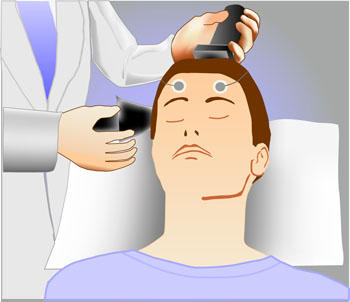 Has anyone ever done electroconvulsive therapy and retained memory?
