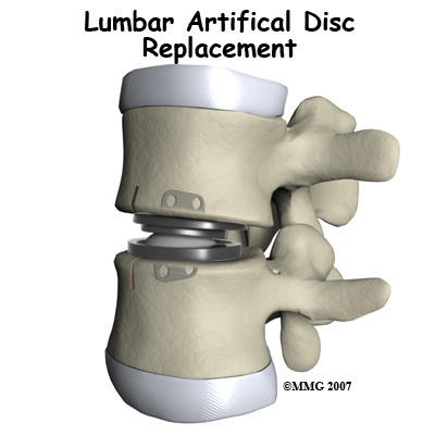 Has any one had spinal disc replacement and what was used?