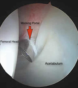 How will the doctor do a hip arthroscopy to fix a labral tear?