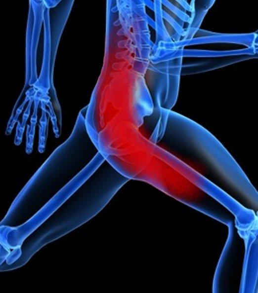 How does sciatica feel?