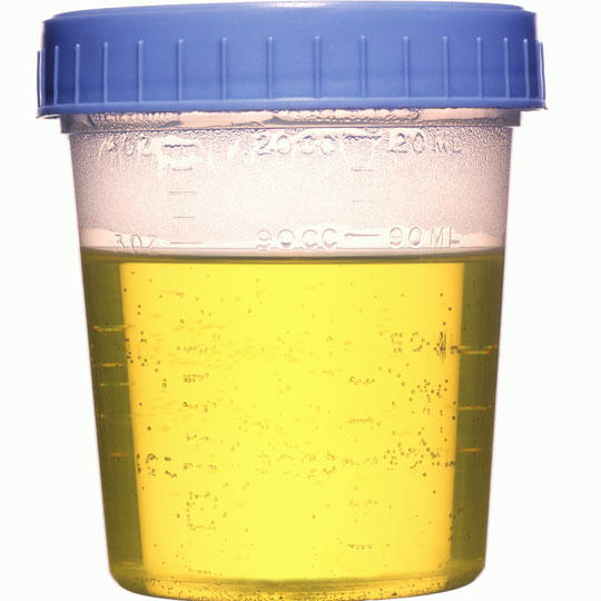 What is the cause of swollen testicules and blood in the urine?