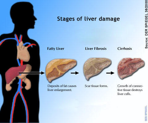 Is ziththromax safe to take with fatty liver?