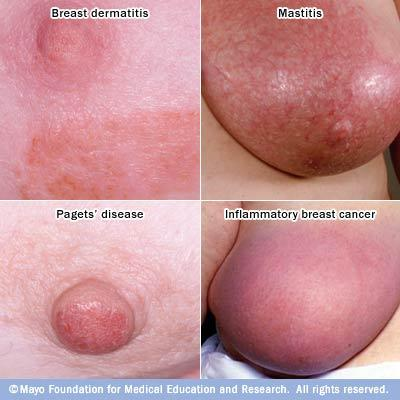 What is paget's breast cancer and is it unlike other breast cancers?