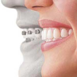 How much more does invisalign cost more than traditional, metal mouth braces?