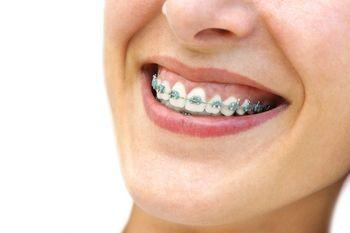How long does it take the average person to get their teeth fixed with braces?