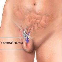 What exactly is a femoral hernia?