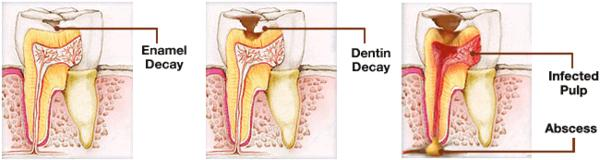 Is it possible for rotting wisdom tooth cause health problems?