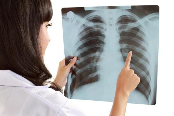 vlek op longen symptomen