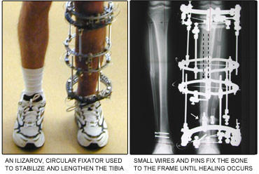 Opinions on the limb lengthening surgery?