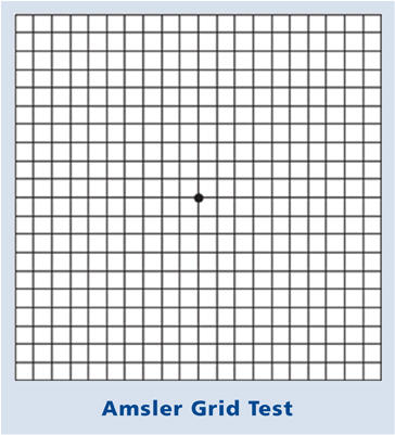 What is an ambler grid and can I use it on the computer?
