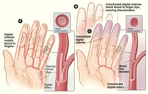 And the disease or process associated with the presence of raynaud's phenomena?