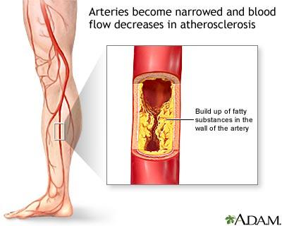 Symptoms Poor Blood Circulation - Doctor insights on HealthTap